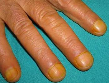 Желтые ногти на пальцах рук - фото